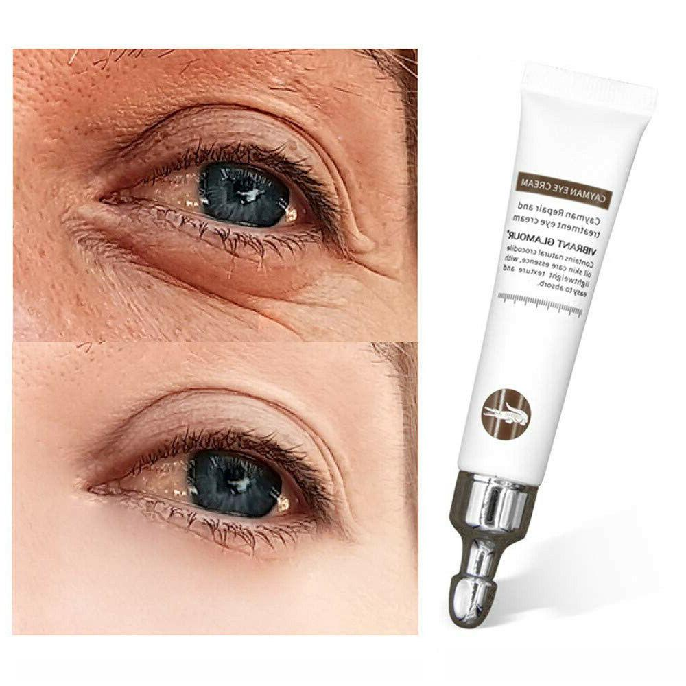 magic eye cream eye serum dark circles